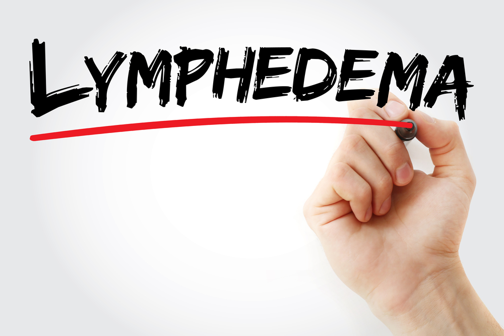 Hand writing lymphedema with marker