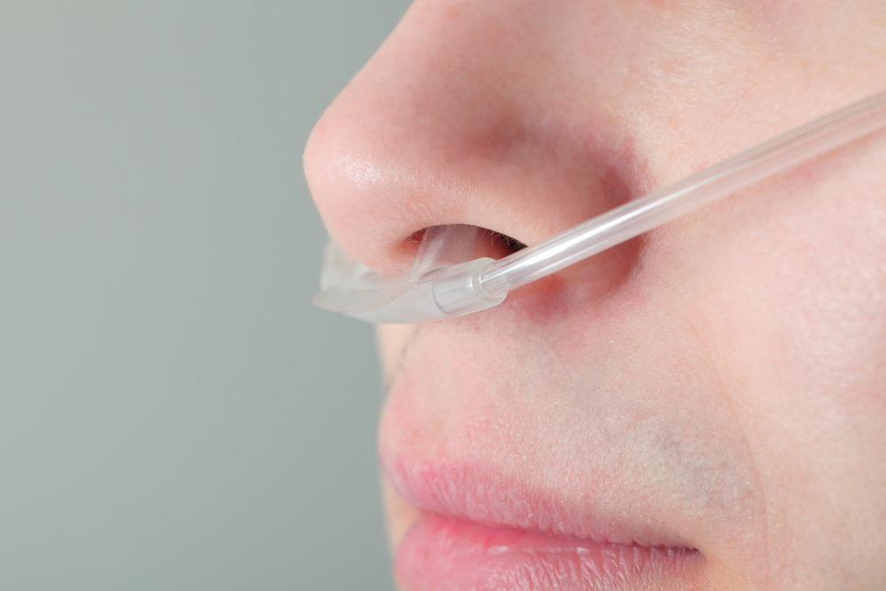 Oxygen tube in patient's nose