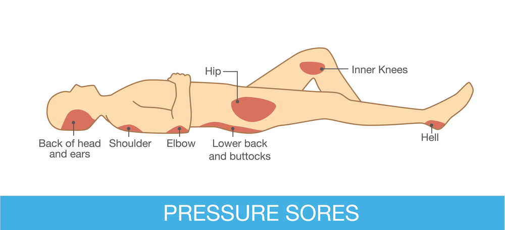 Illustration showing common areas for pressure sores